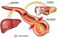 6 Step Low Cholesterol Diet Plan