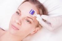 Derma Roller, Cellulite Treatment, Stretch Mark Treatment