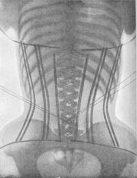 Les corsets de 1908 aux rayons X - La boite verte