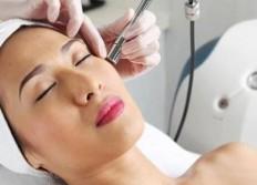 Microdermabrasion Treatment (Crystal Free) | indulgences | Pinterest
