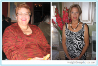 100 Ibs + | Weight loss photos