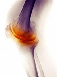 Study Supports Non-Pharmacologic Management for Osteoarthritis